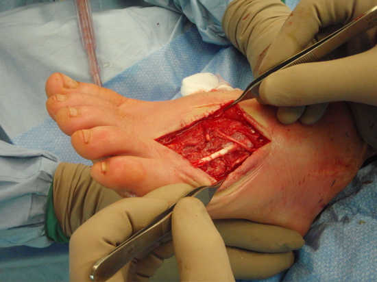 clean-as-a-whistle-and-5th-toe-tendon-good
