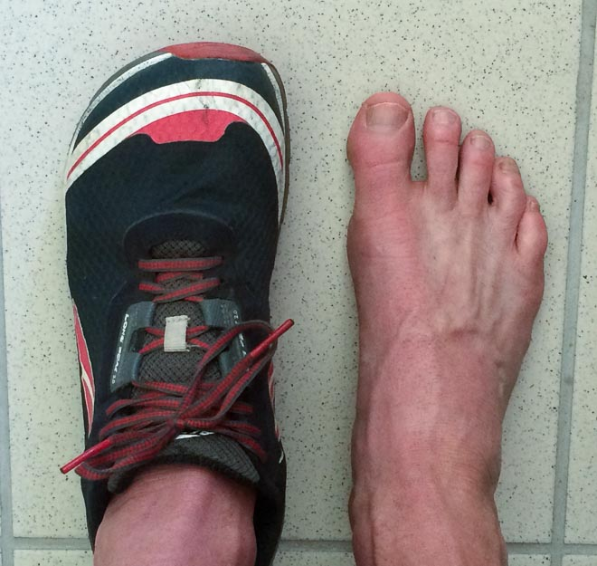 Conrad Stoltz Altra Running Lone Peak 2.0 Footshape toe box_